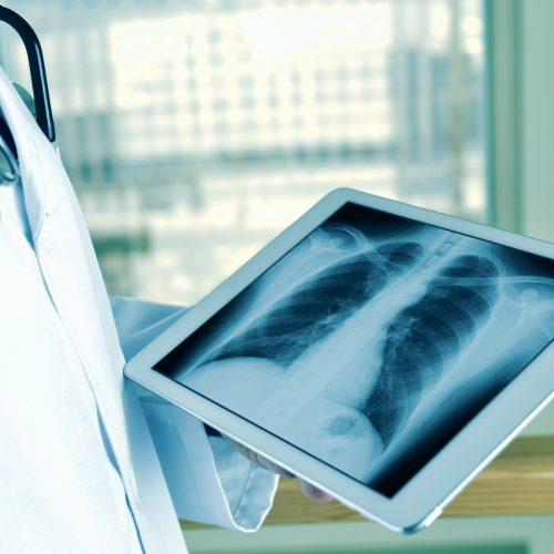 closeup of a young caucasian doctor man observing a chest radiograph in a tablet computer